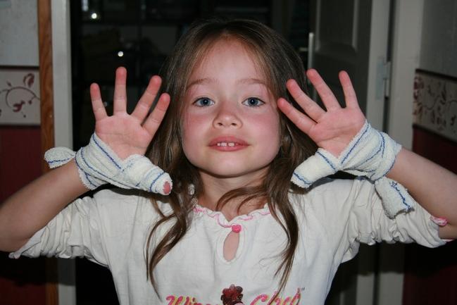 Le blog de la famille lemonnier - Comment arreter de faire pipi au lit a 15 ans ...